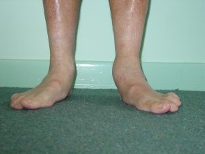 flat feet foot and ankle