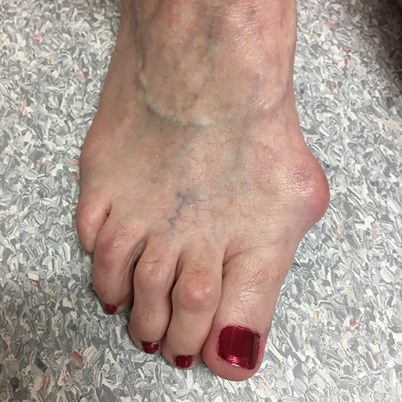 Foot Condition - Bunion