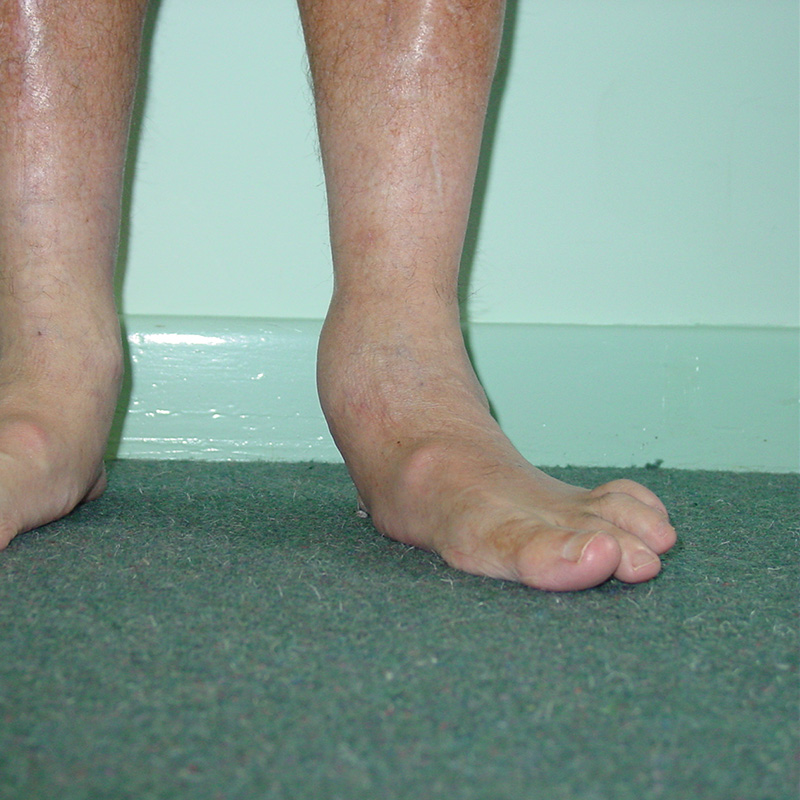 Foot Condition - Flat Feet