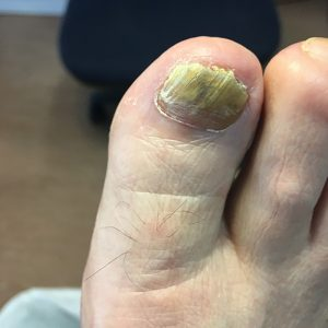 Foot Condition - Fungal Nail