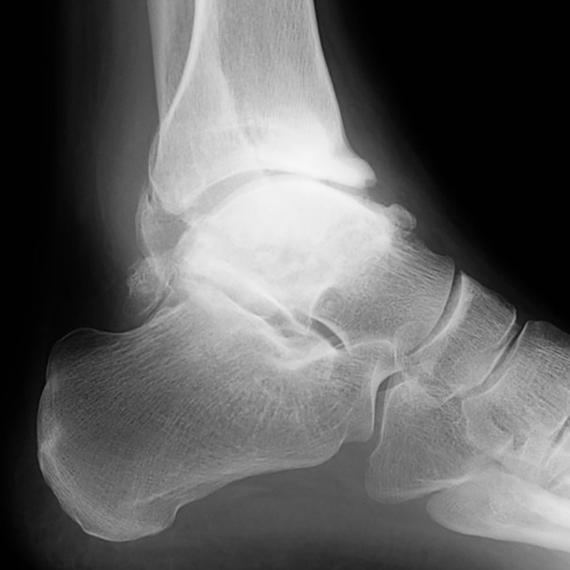 Foot Condition - High-Ankles