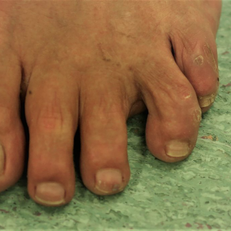 Foot Condition - Neuroma