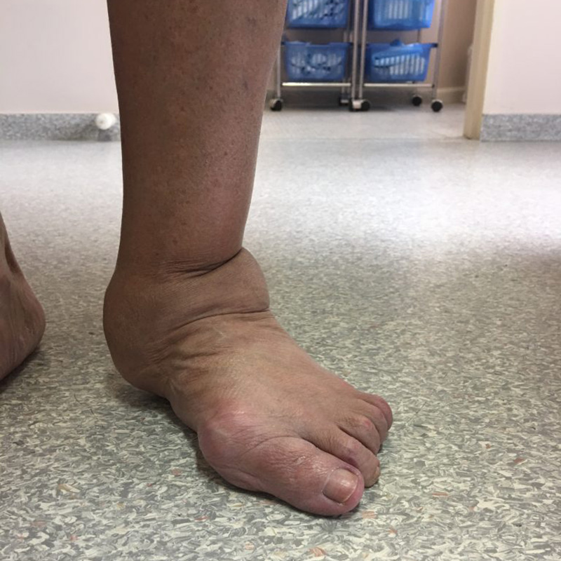 Foot Condition - Pain and Instability