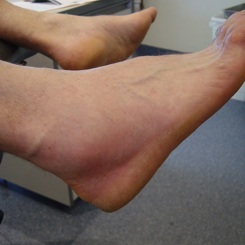 Foot Condition - Tendonitis