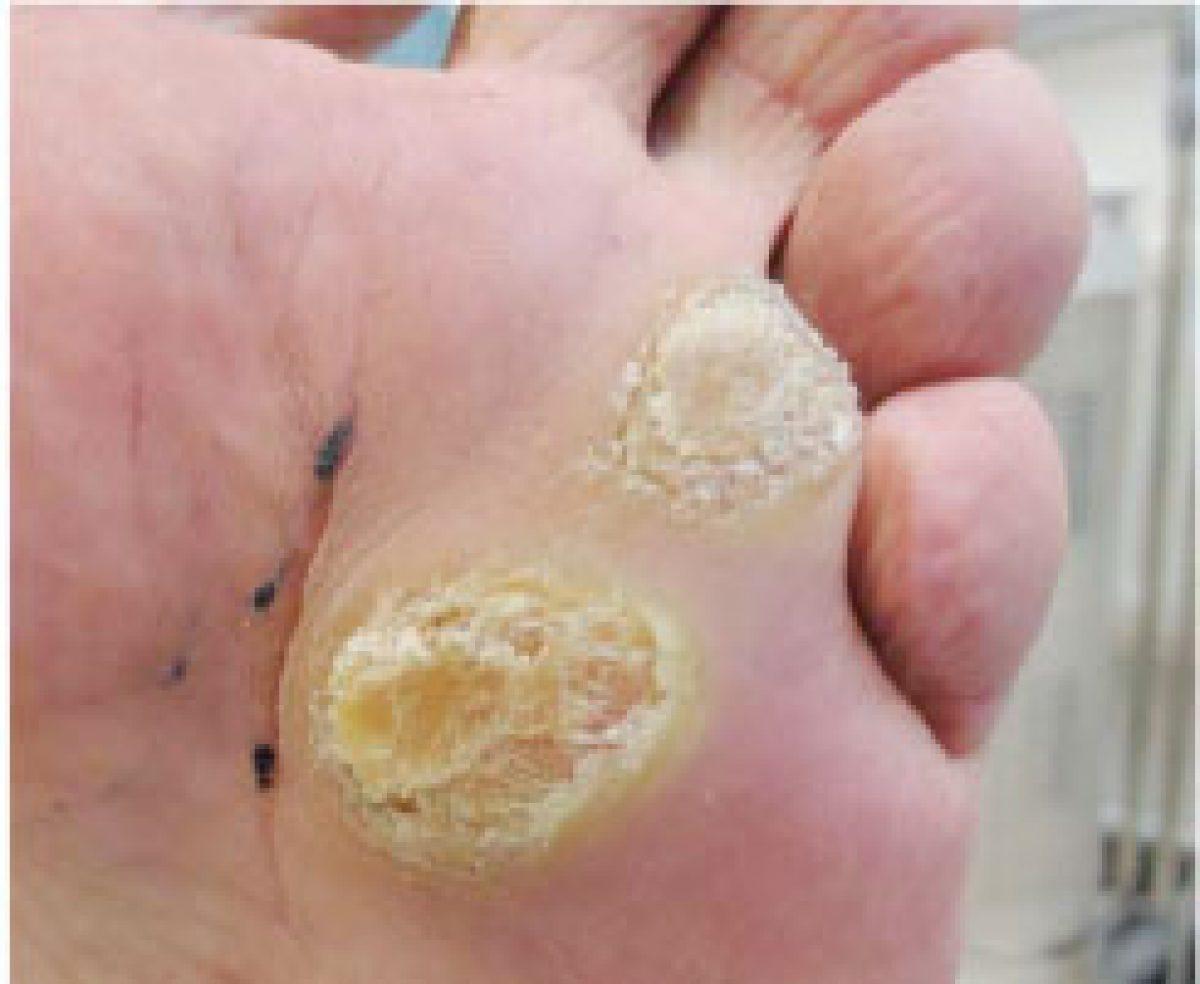 papilloma wart on foot)