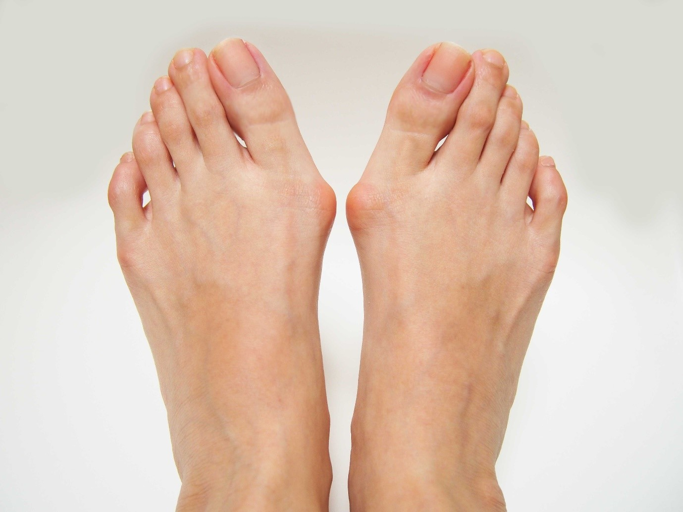 Bunions - Foot And Ankle