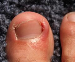 How to Treat and Prevent Ingrown Toenails