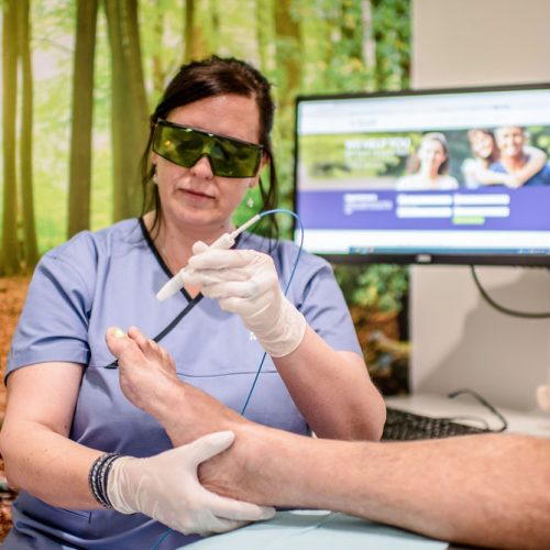 Laser therapy to eliminate fungal nails