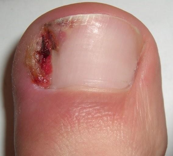 onychocryptosis or ingrown toenail
