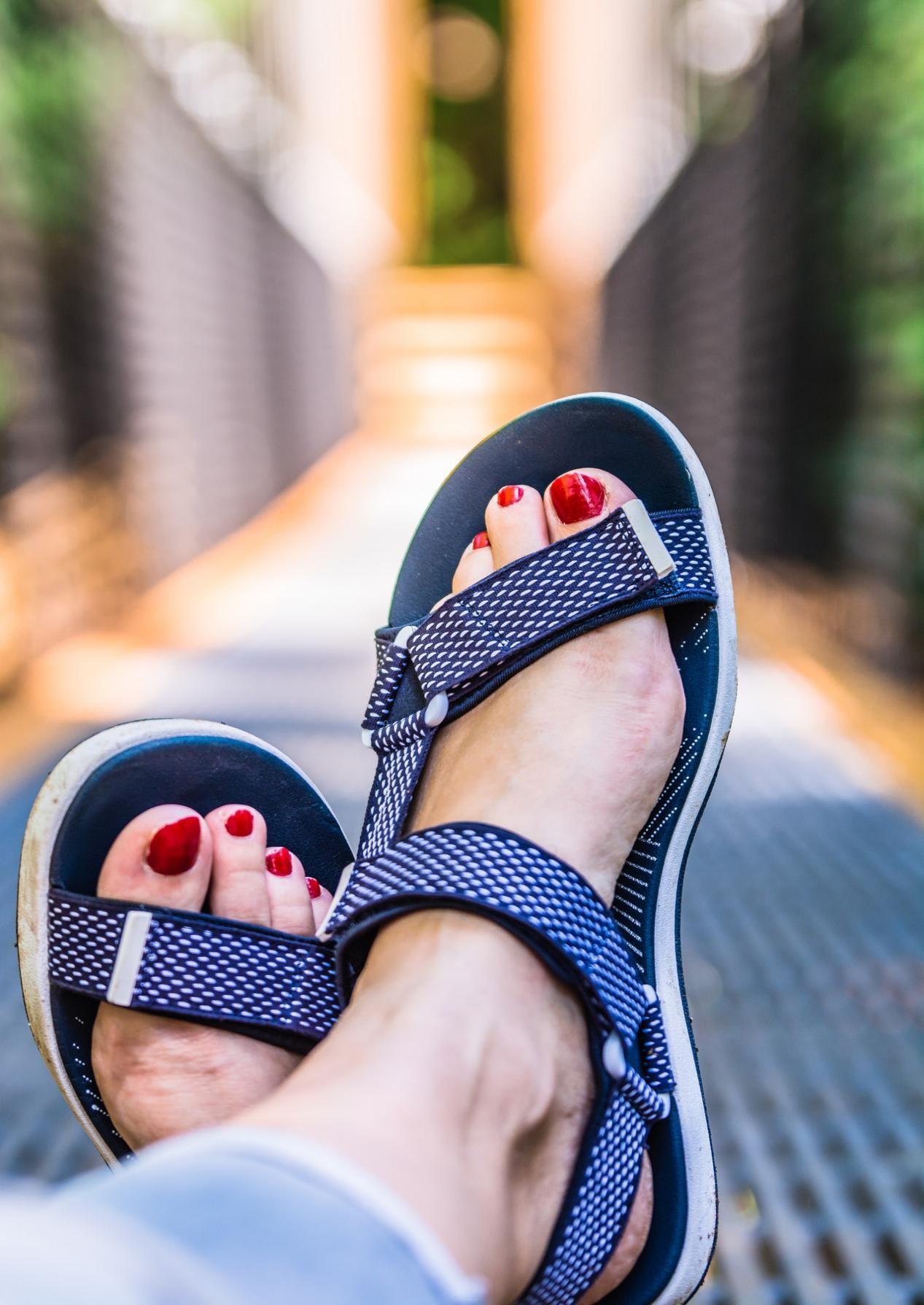comfortable wear as remedy for ingrown toenail