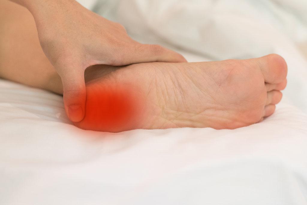 footcondition-heel-spurs-and-plantar-fasciitis-adelaide-podiatrist