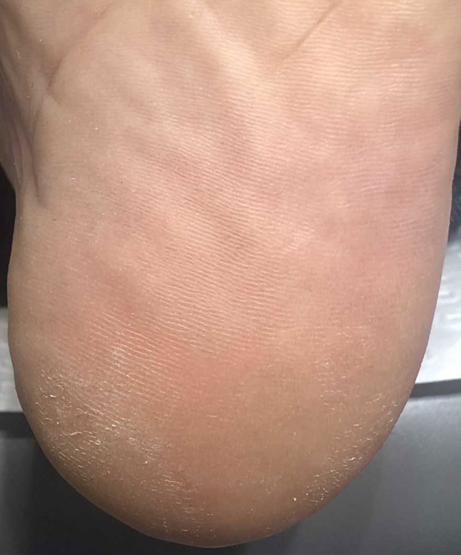 swift-microwave-wart-therapy-case2a-after