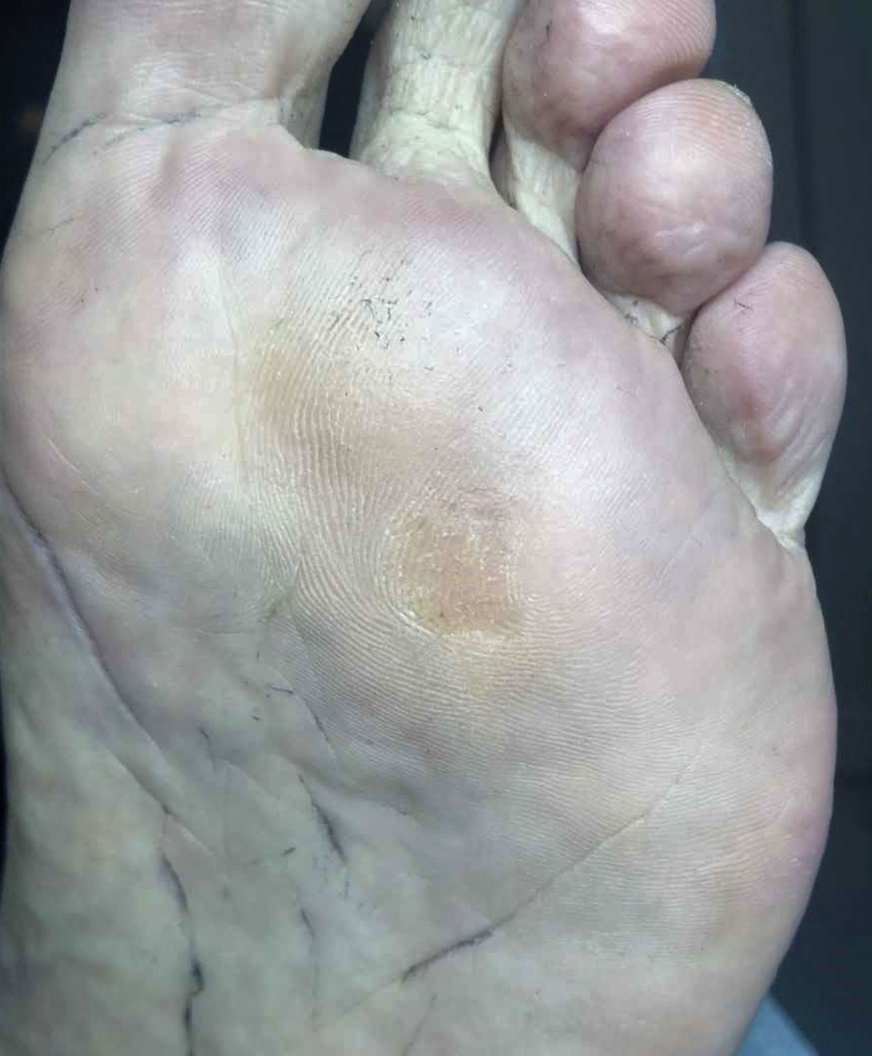 swift-microwave-wart-therapy-case2b-after