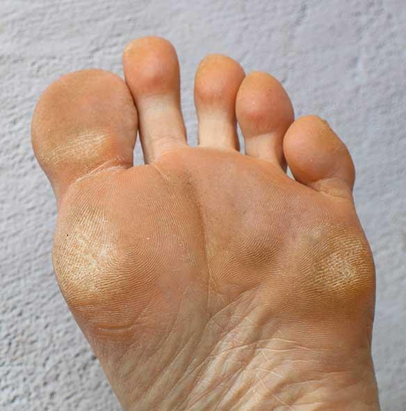calloused-feet-treatment