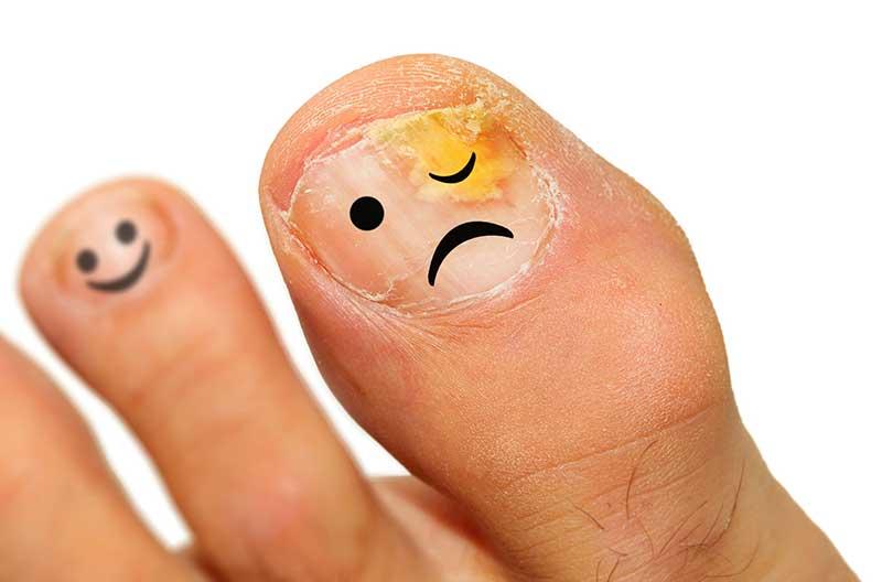 fungal-nail-diagnosis