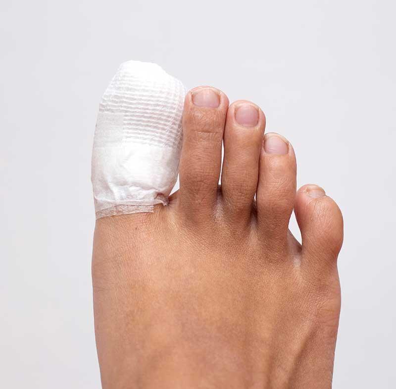 treated-ingrown-toenail