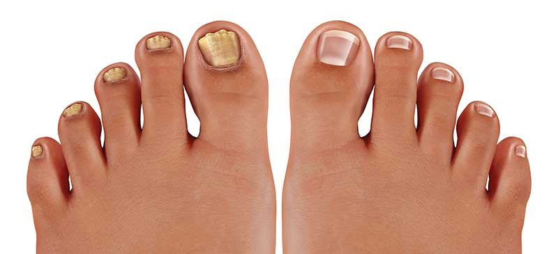 what-is-fungal-nail